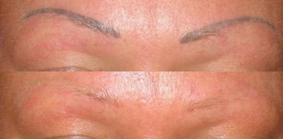 microblading-removal-cut