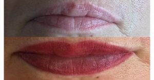 Permanent Make-Up Entfernung