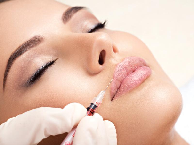 Health & Beauty Lounge Zurich Faltenunterspritzung mit Hyaluron, Mehr Lippenvolumen, Aufbau Lippenkontur, neue Lippen