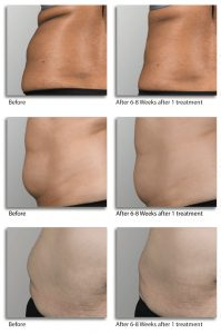 before after Lipo-Laser