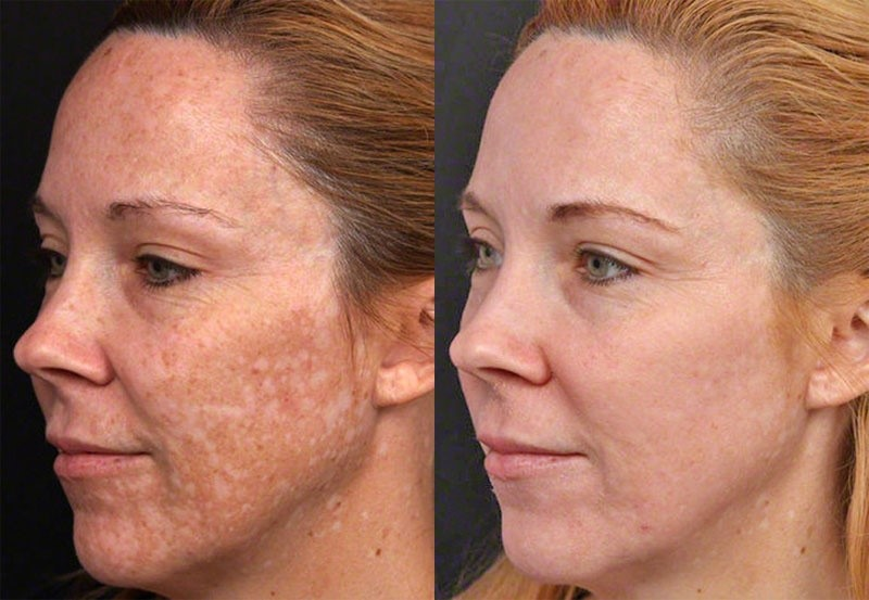 Hautverjüngung mit neuester E-Light Technologie aus den USA