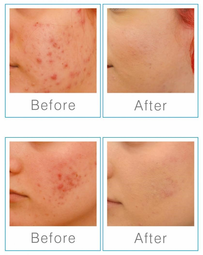 Skin rejuvenation with the latest E-Light technology from the USA