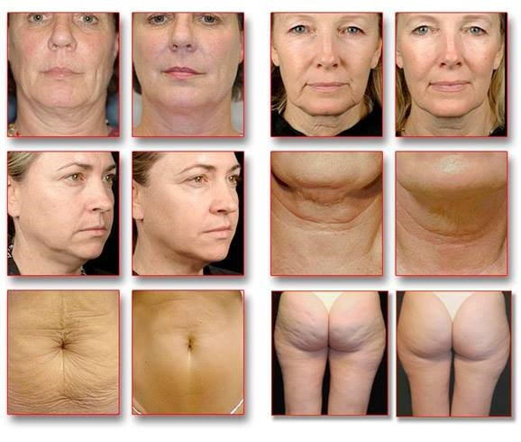 Thermage - Body firming and rejuvenating