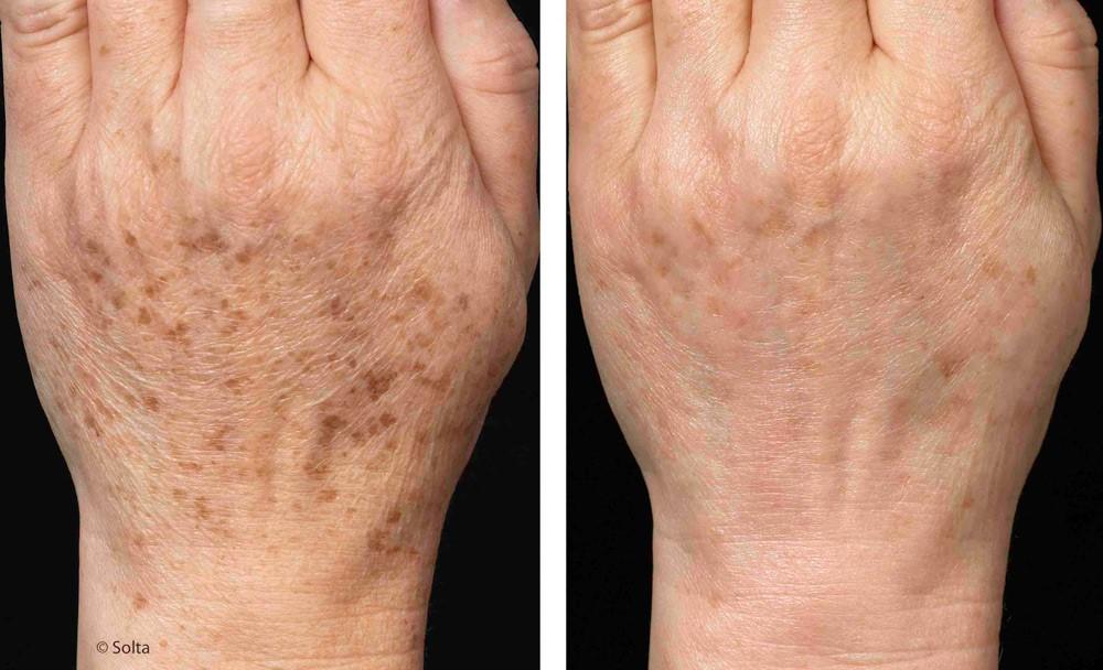 Entfernung von Hyperpigmentierungen / dunklen Flecken